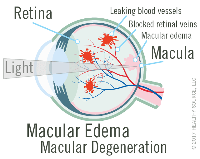 diagram of eye with macular edema and wet macular degeneration shows macula and retina, leaking blood vessels, macular edema (swelling in macula), blocked retinal veins.