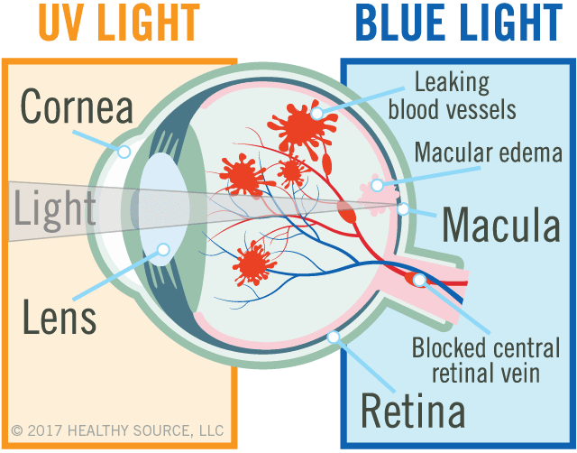 diagram of eye shows cornea, lens, macula and retina, leaking blood vessels, macular edema (swelling in macula), blocked central retinal vein.