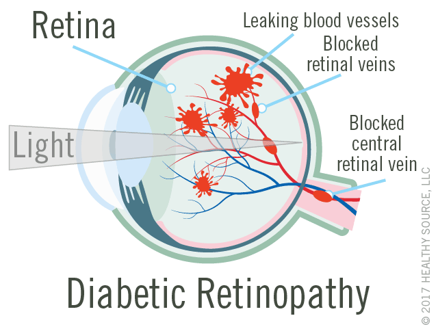 diagram of eye with diabetic retinopathy shows retina, leaking blood vessels, blocked central retinal vein.