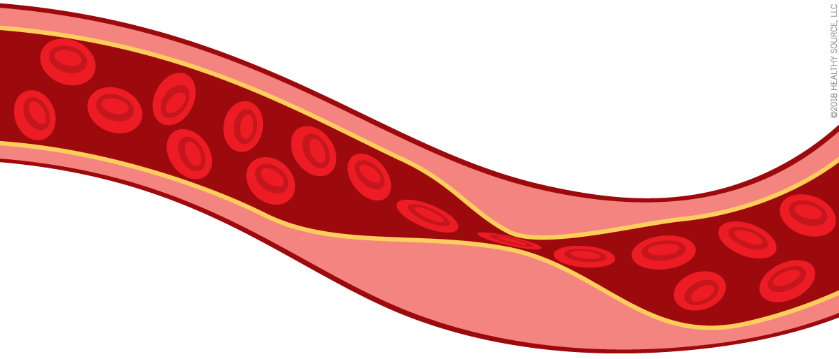 Flavay improves red blood cell membranes so they remain flexible.